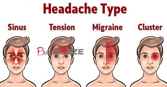 headache types