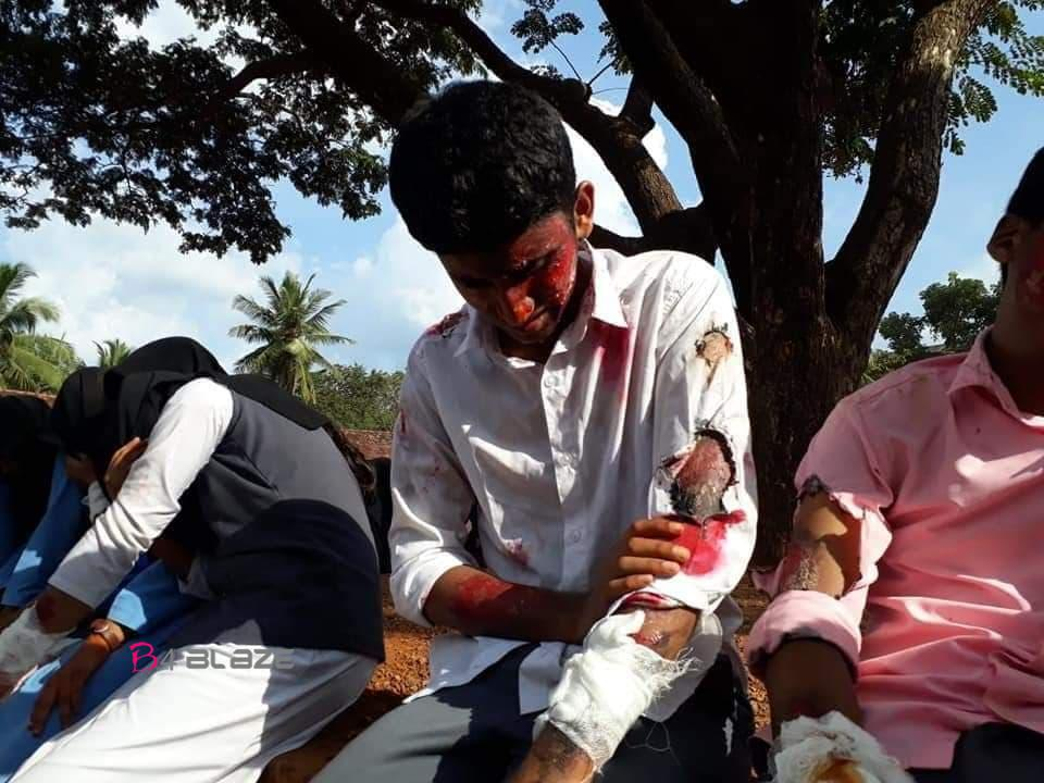 Injured students in Fire
