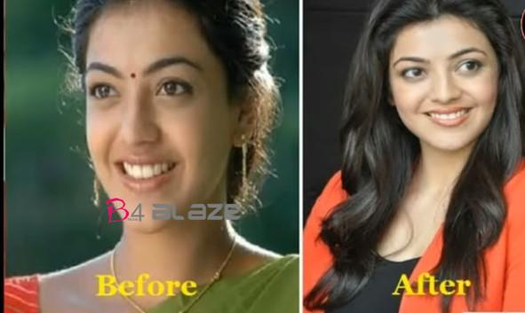 kajal Before and after plastic surgery