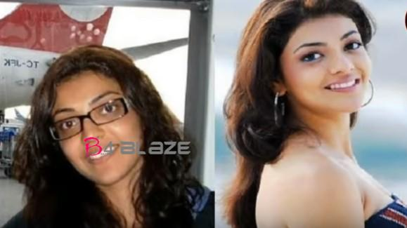kajal Before and after plastic surgery 1
