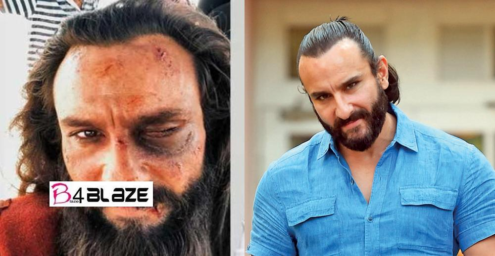 Saif Ali Khan seen in bad condition, has deep injury to eyes, leaked photo is getting viral