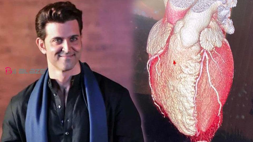 Hrithik Roshan shares the shape of his heart